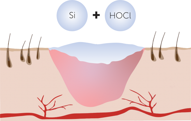 Scarless 2D Diagram Silicone + Hypochlorous Acid